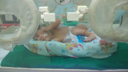Miris, Seorang Bayi di Tembilahan Lahir dengan Usus Terburai